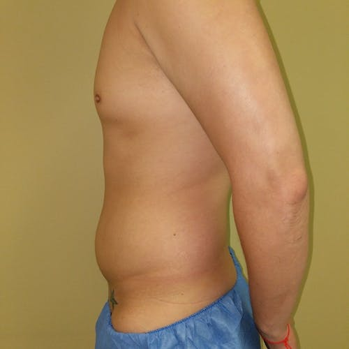 Male Liposuction Gallery - Patient 3821983 - Image 5