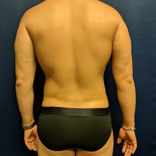 Male Liposuction Gallery - Patient 3821983 - Image 8