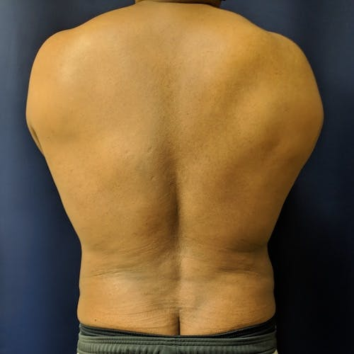 Male Liposuction Gallery - Patient 3821987 - Image 2