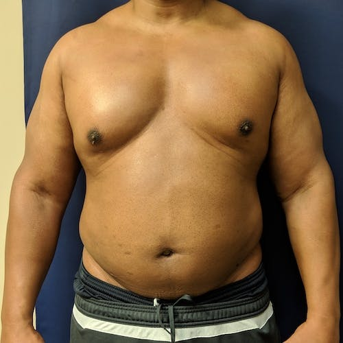 Male Liposuction Gallery - Patient 3821987 - Image 6
