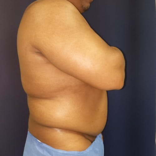 Male Liposuction Gallery - Patient 3821987 - Image 7