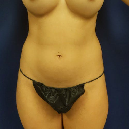 Flank-Lower Back Liposuction Gallery - Patient 4614893 - Image 7