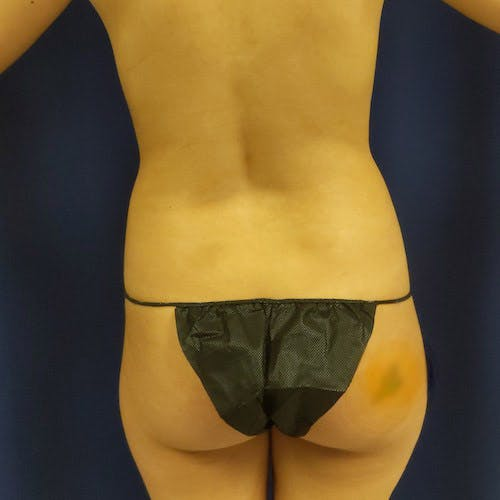 Flank-Lower Back Liposuction Gallery - Patient 4614893 - Image 1