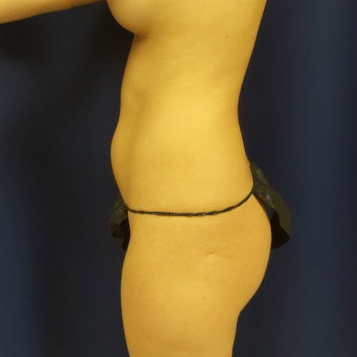 Flank-Lower Back Liposuction Gallery - Patient 4614893 - Image 5
