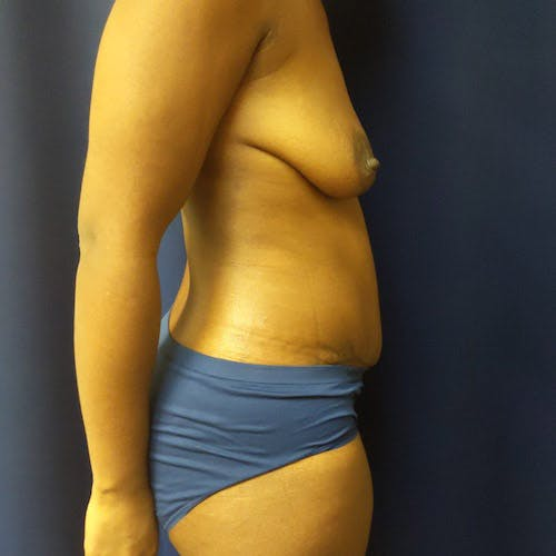Tummy Tuck Gallery - Patient 4614917 - Image 6