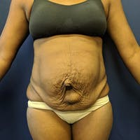 Tummy Tuck Gallery - Patient 4614917 - Image 1