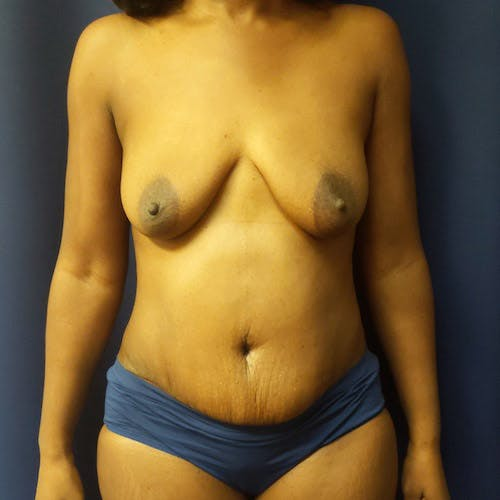 Tummy Tuck Gallery - Patient 4614917 - Image 2