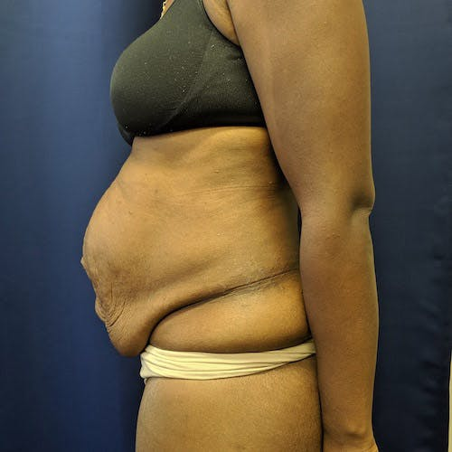 Tummy Tuck Gallery - Patient 4614917 - Image 3