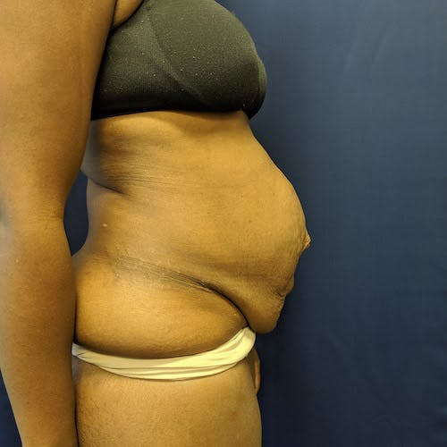 Tummy Tuck Gallery - Patient 4614917 - Image 5