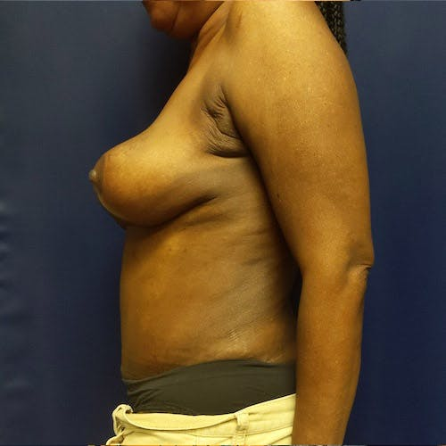 Tummy Tuck Gallery - Patient 4615079 - Image 4