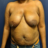 Breast Lift Gallery - Patient 4615109 - Image 1
