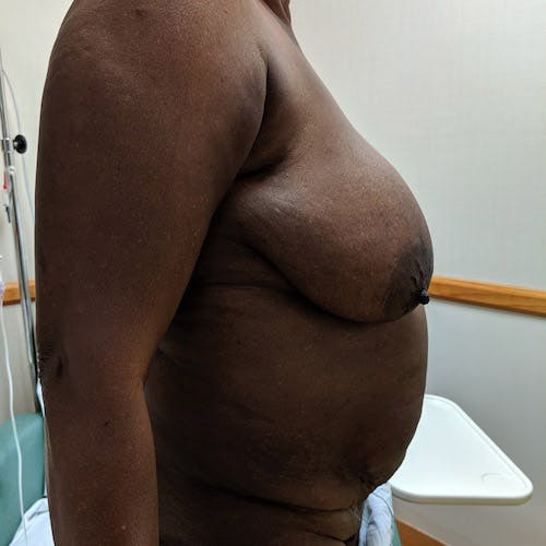 Breast Lift Gallery - Patient 4615109 - Image 5