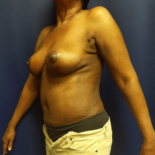 Breast Lift Gallery - Patient 4615109 - Image 10