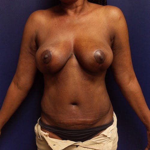 Mommy Makeover Gallery - Patient 4615114 - Image 2