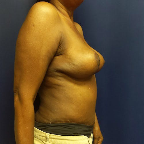 Mommy Makeover Gallery - Patient 4615114 - Image 6