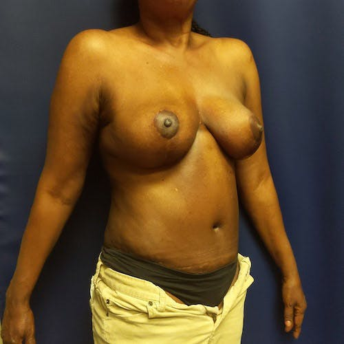 Mommy Makeover Gallery - Patient 4615114 - Image 8
