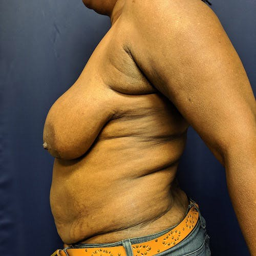 Mommy Makeover Gallery - Patient 4615114 - Image 9