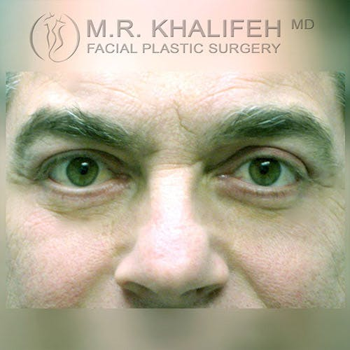 Eyelid Surgery  Gallery - Patient 4615218 - Image 2