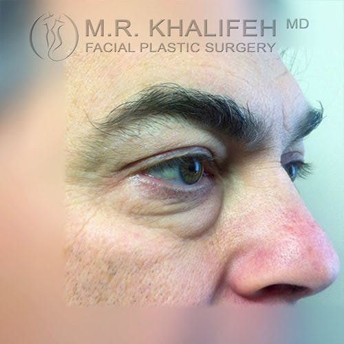 Eyelid Surgery  Gallery - Patient 4615218 - Image 3