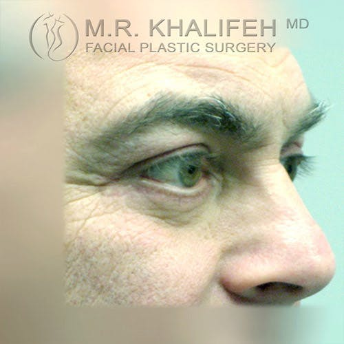 Eyelid Surgery  Gallery - Patient 4615218 - Image 4