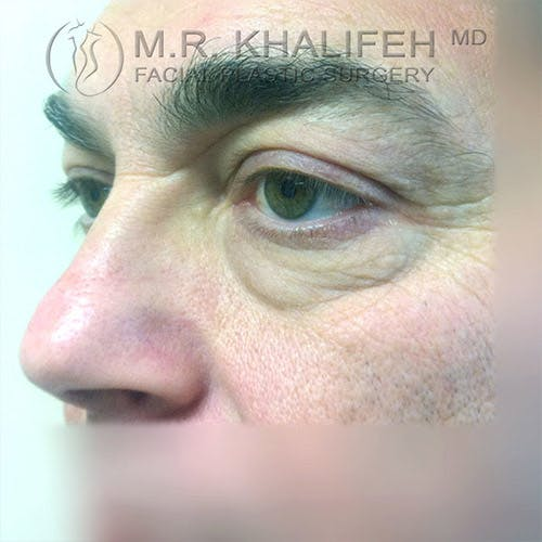 Eyelid Surgery  Gallery - Patient 4615218 - Image 5