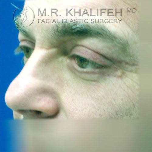 Eyelid Surgery  Gallery - Patient 4615218 - Image 6