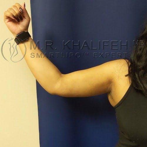 Arm Liposuction Gallery - Patient 4697899 - Image 2