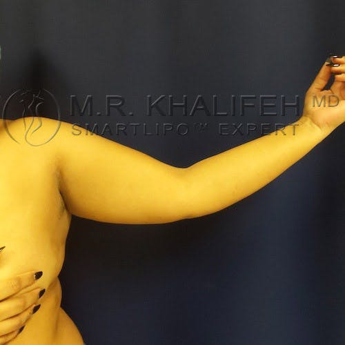 Arm Liposuction Gallery - Patient 4697899 - Image 3