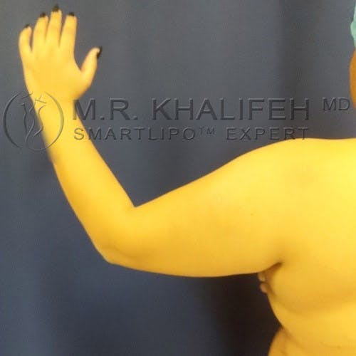 Arm Liposuction Gallery - Patient 4697899 - Image 5