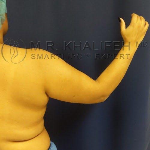 Arm Liposuction Gallery - Patient 4697899 - Image 7