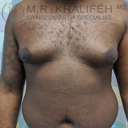 Gynecomastia Gallery - Patient 4698161 - Image 1