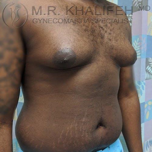 Gynecomastia Gallery - Patient 4698161 - Image 7