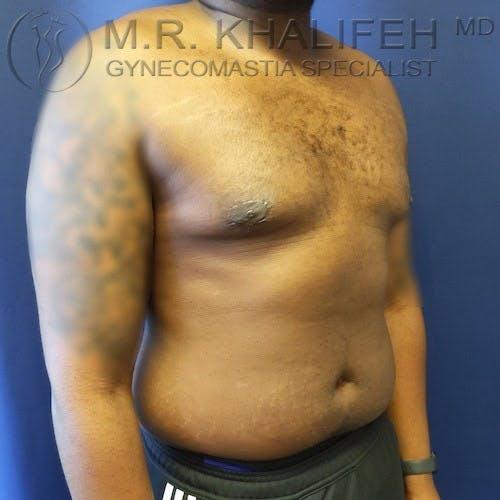Gynecomastia Gallery - Patient 4698161 - Image 8