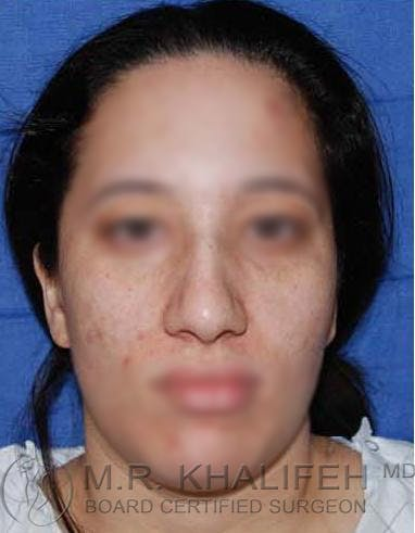 Rhinoplasty Gallery - Patient 4820093 - Image 1