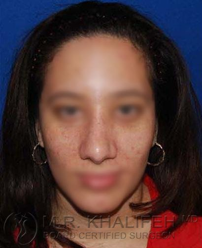 Rhinoplasty Gallery - Patient 4820093 - Image 2