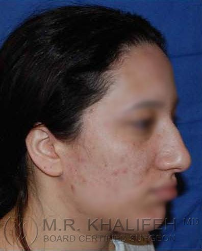 Rhinoplasty Gallery - Patient 4820093 - Image 3