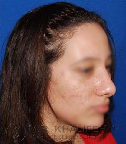Rhinoplasty Gallery - Patient 4820093 - Image 4