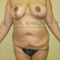 Tummy Tuck Gallery - Patient 5883404 - Image 1