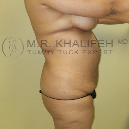 Flank-Lower Back Liposuction Gallery - Patient 5883463 - Image 7
