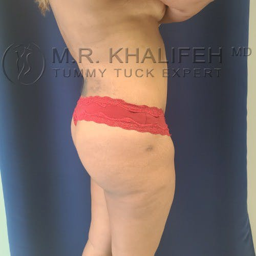 Flank-Lower Back Liposuction Gallery - Patient 5883463 - Image 4