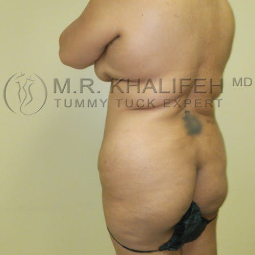 Flank-Lower Back Liposuction Gallery - Patient 5883463 - Image 5