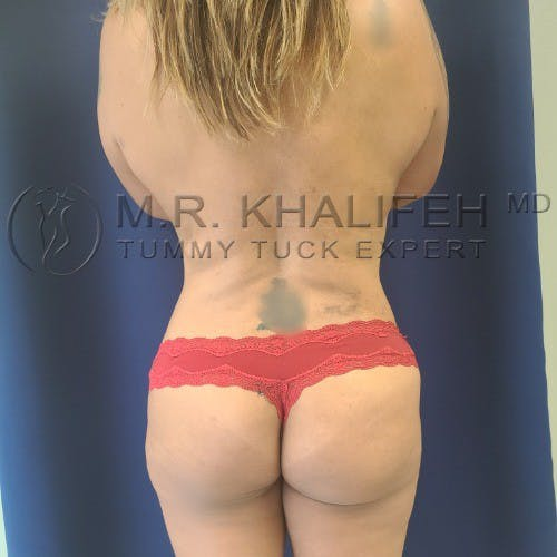 Flank-Lower Back Liposuction Gallery - Patient 5883463 - Image 2