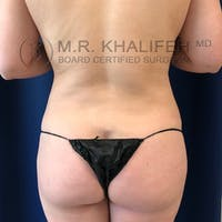 Flank-Lower Back Liposuction Gallery - Patient 8651109 - Image 1