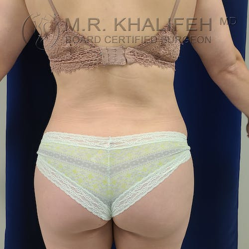 Flank-Lower Back Liposuction Gallery - Patient 8651109 - Image 2
