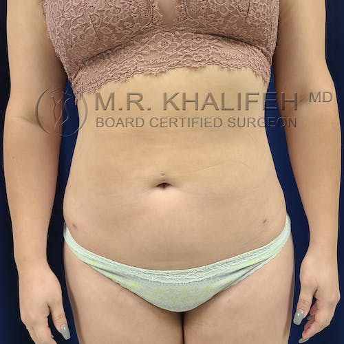 Abdominal Liposuction Gallery - Patient 8651115 - Image 2