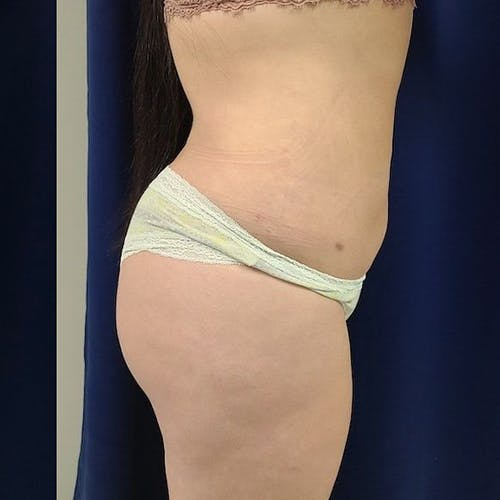 Abdominal Liposuction Gallery - Patient 8651115 - Image 4