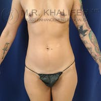 Fat Transfer Breast Augmentation Gallery - Patient 8669720 - Image 1