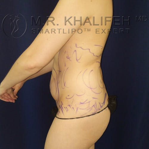 Abdominal Liposuction Gallery - Patient 10215514 - Image 7