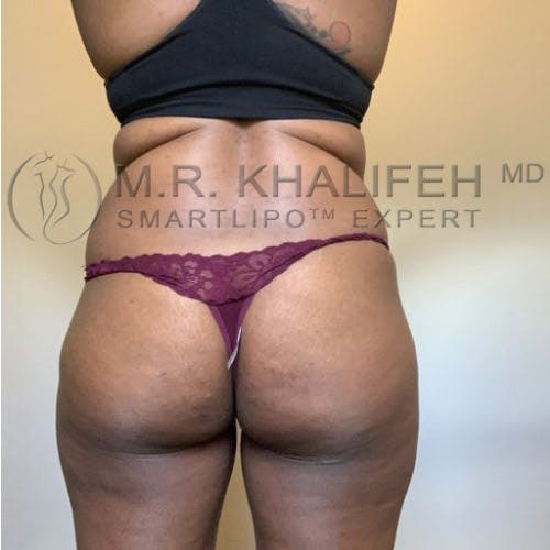 Brazilian Buttock Lift Gallery - Patient 11269969 - Image 1