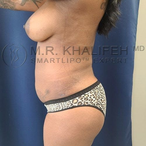 Brazilian Buttock Lift Gallery - Patient 11269969 - Image 6